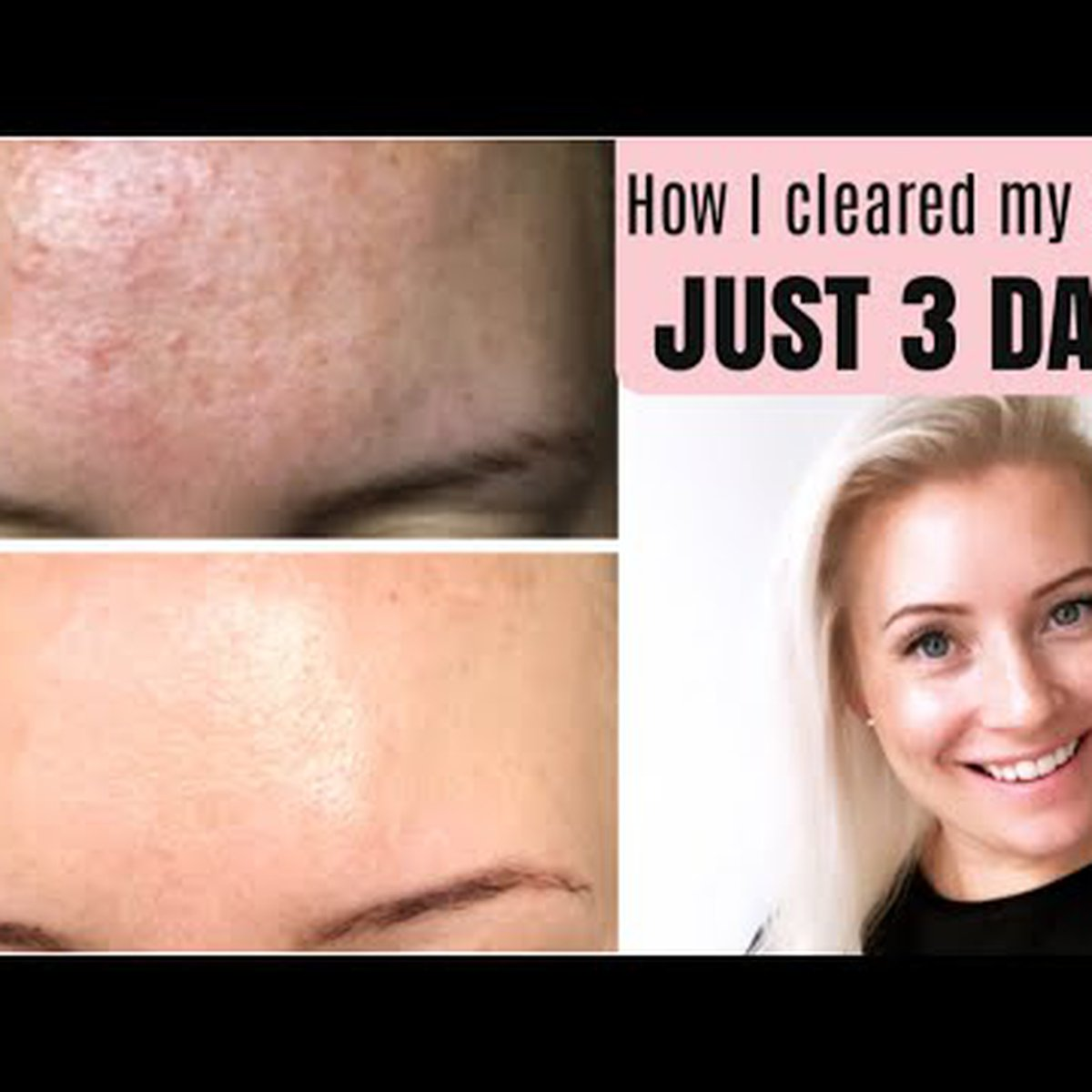 Clear Tint Bumps On Your Forehead Fast How To Treat Fungal Acne Malassezia Being Mrs Dudley Channel Mum